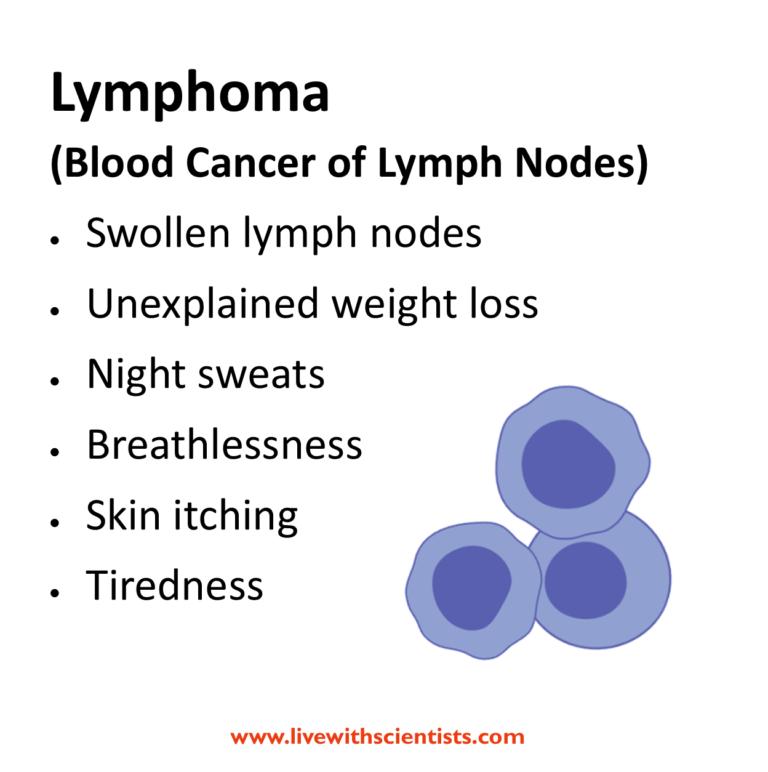 lymphoma_signs